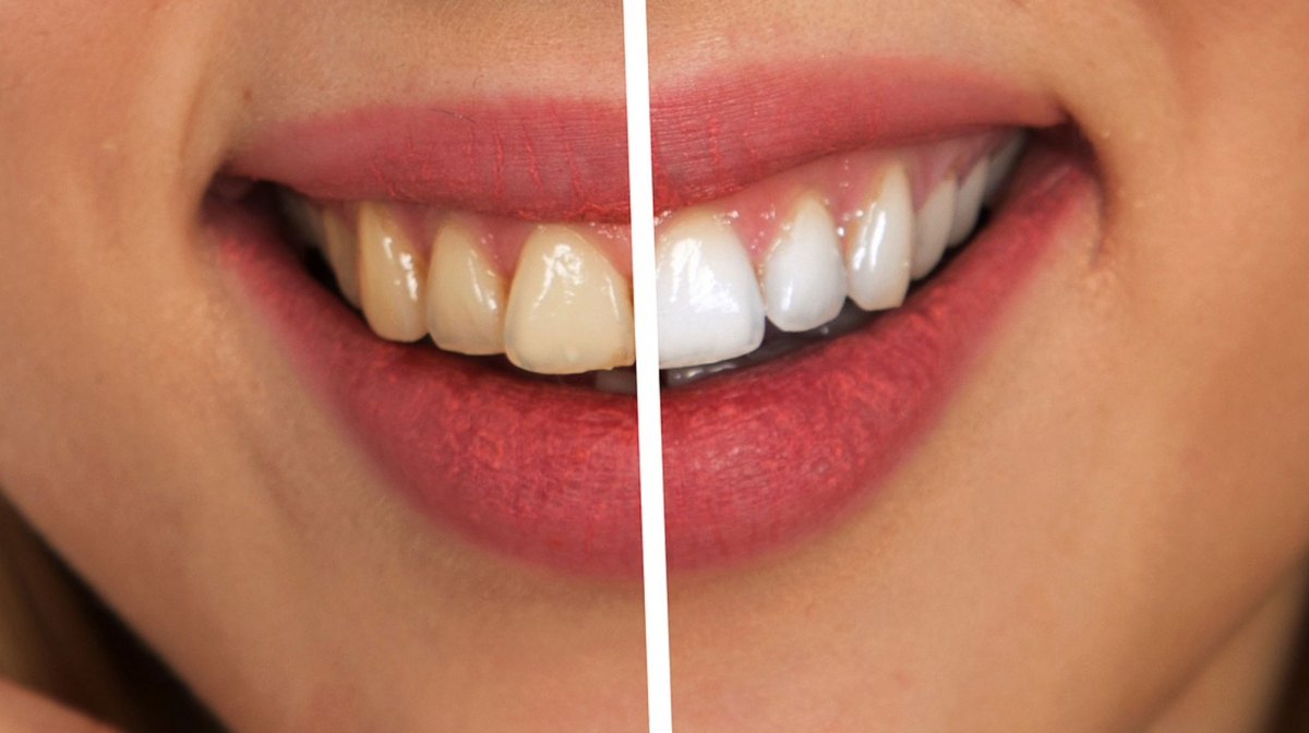 blanqueamiento-dental-laser-la-linea