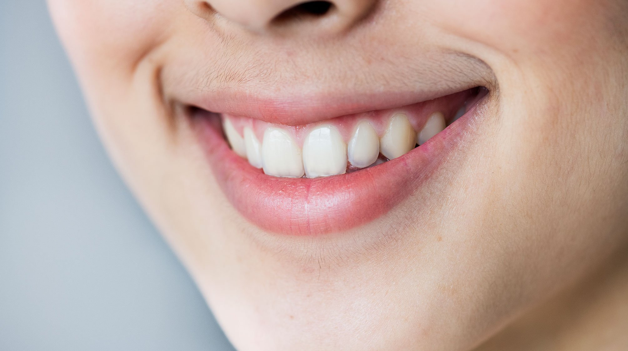 fundas-dentales-la-linea-uniclinic