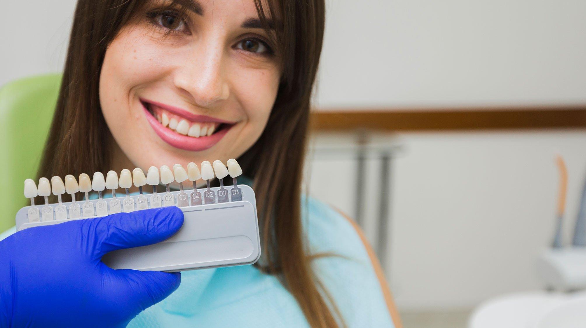 carillas-dentales-uniclinic-la-linea